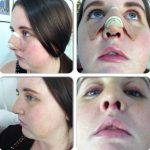 Does Fixing A Deviated Septum Help Photos