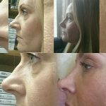 Female Septorhinoplasty Before And After (2)