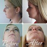 Female Septorhinoplasty Before And After (5)