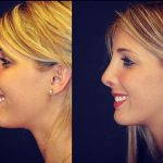 Fix Deviated Septum During Rhinoplasty Before And After (2)
