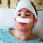 Fixing A Deviated Septum Is Usually Performed As An Outpatient Procedure Unless Major Complications Arise