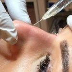 Get Rid Of Nose Bump Without Surgery