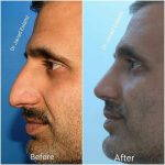 Good Male Nose Jobs (2)