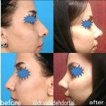 Hooked Nose Job Can Be Done As A Closed Rhinoplasty