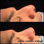 Hooked Nose Job Photos (1)