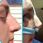 Hooked Nose Rhinoplasty Before And After Pictures (2)