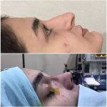 Hooked Nose Rhinoplasty Is Required To Produce A More Desirable Nasolabial Angle