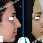Hooked Nose Surgery Before And After Photo