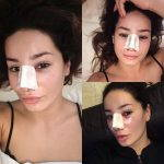 How Does Deviated Septum Surgery Work Photo