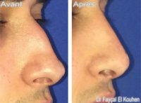 In The Proper Hands, The Rhinoplasty Is Very Safe