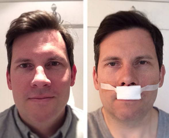 Male Deviated Septum Surgery Rhinoplasty Cost Pics Reviews Q A
