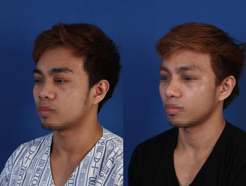 Male Korean Nose Job Pictures » Rhinoplasty: Cost, Pics ...