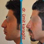 Male Nose Bump Removal (1)