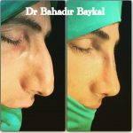 Male Nose Bump Removal (3)
