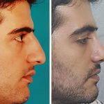 Male Nose Bump Surgery