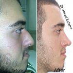 Male Nose Job Before After (3)