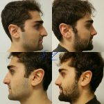 Male Nose Job Before And After Photos (10)