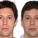 Male Nose Job Before And After Photos (3)