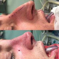 Male Nose Job If You Are Unhappy With Your Nose