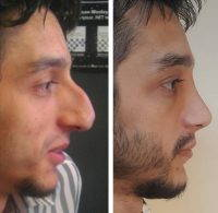 Male Rhinoplasty Can Radically Change The Appearance Of Your Face