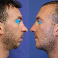 Male Rhinoplasty O Re-shape A Man's Nose