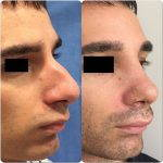 Male Rhinoplasty Pictures (1)