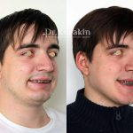 Male Rhinoplasty Pictures (2)