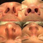 Male Rhinoplasty Procedure Before And After (7)
