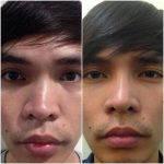 Male Rhinoplasty Results (5)