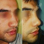 Male Rhinoplasty Tends To Increase Confidence Or Boost Self-esteem
