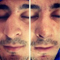 Male Rhinoplasty To Refine The Shape Of The Nose