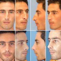 Mens Nose Job Photos
