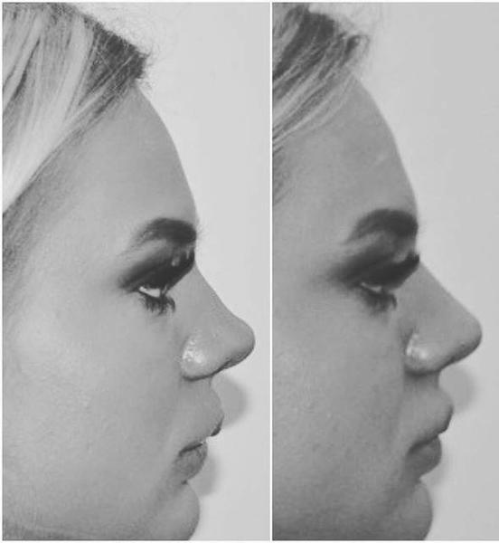 Non Surgical Nose Job Using Dermal Fillers Radiesse