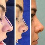 Nose Bump Deviated Septum Before And After Photos (2)