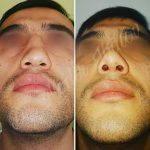 Nose Bump Removal Photos (2)