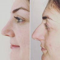 Nose Bump Removal Surgery Can Make A Significant Difference In The Whole Appearance Of The Face