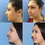 Nose Bump Surgery Can Correct A Wide Variety Of Nasal Issues, Including A Humped Or Wide Bridge