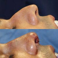 Nose Bump Surgery To Achieve Maximal Results