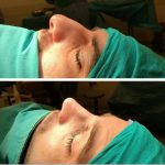 Nose Job Bump Removal Before And After (2)