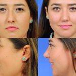 Nose Surgery For Bump Photos (2)
