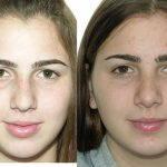 Nose Surgery Hump Removal Closed Rhinoplasty Photos (1)