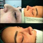 Nose Surgery To Remove Bump Pictures (3)