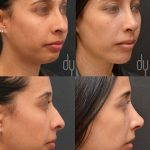 Nostril Blockage Surgery (2)