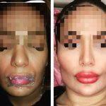Nostril Stenosis Surgery