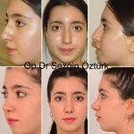 Nostril Surgery If The General Width Of The Nose Does Not Compliment Your Overall Facial Features