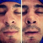 Nostril Surgery Reduction (6)
