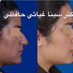Persian Hooked Nose