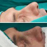 Photos Of Male Rhinoplasty Surgery (2)