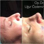 Photos Of Removing A Nose Bump (2)