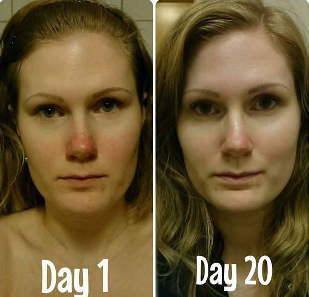 Natural Rosacea Treatment Reviews